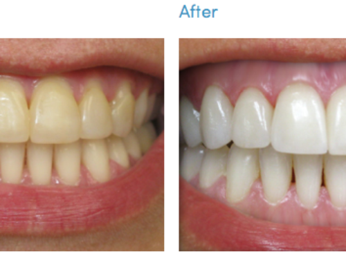 Professional or At-Home Teeth Whitening