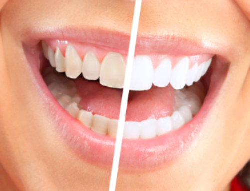 The Importance Of Teeth Cleaning