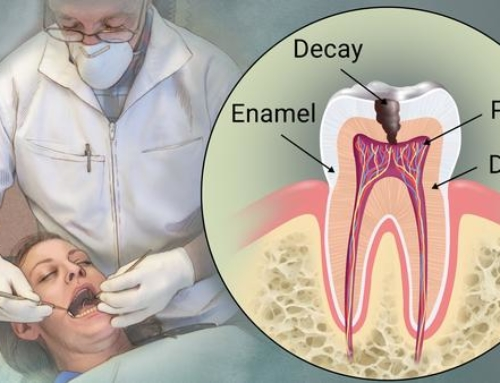 Tooth Fillings Options Explained