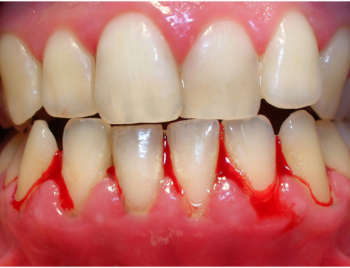 Why Are My Gums Bleeding? Monroe NC Dentist Explains