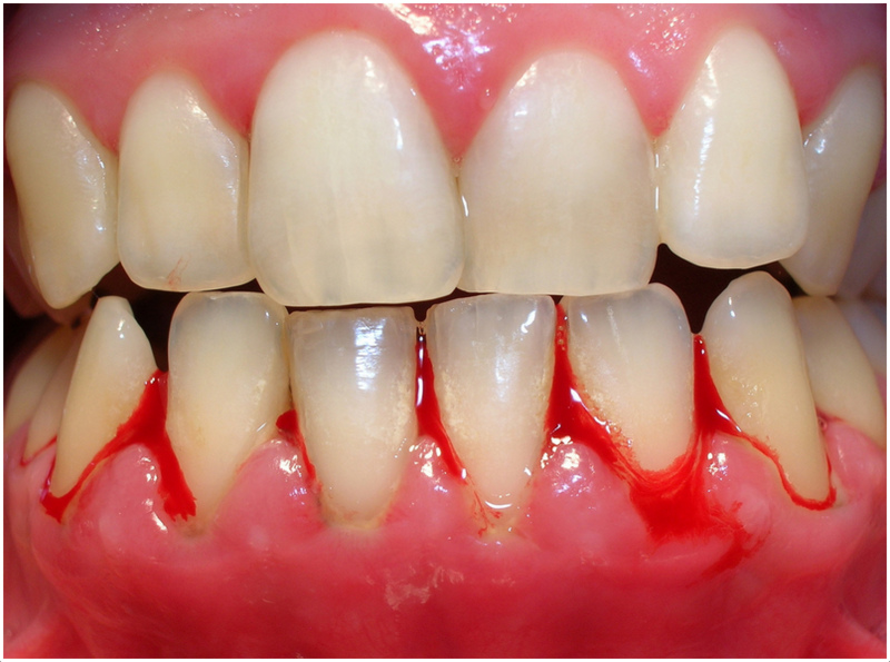 Why Are My Gums Bleeding?