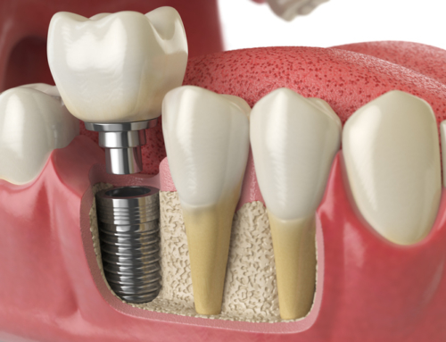 Get Dental Implants in Monroe NC Appointment & Procedure Overview