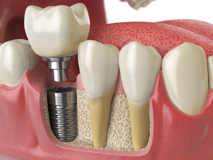 dental implants in monroe nc
