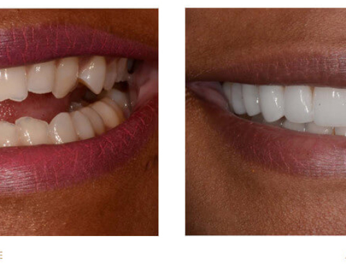 Veneers: A Permanent Way To Whiten Teeth