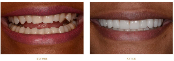 Veneers A Permanent Way To Whiten Teeth Monroe Family Dentistry