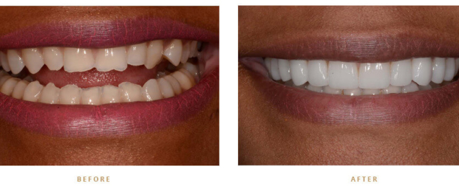 Permanently whiten teeth monroe nc dentist