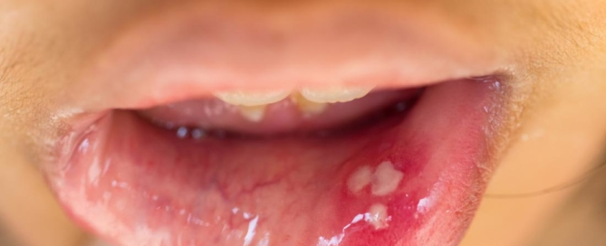 hpv throat and mouth cancer