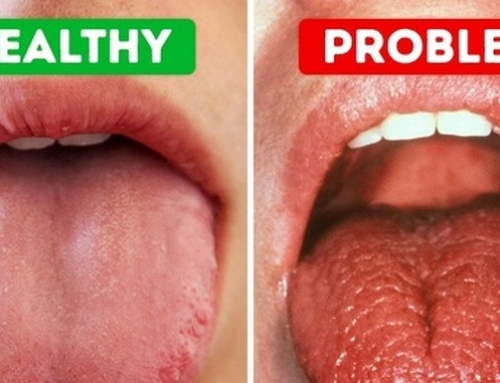 Causes Of Dry Mouth And Prevention Tips