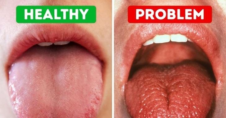 Dry Mouth (Xerostomia) Treatment | Monroe Family Dentist