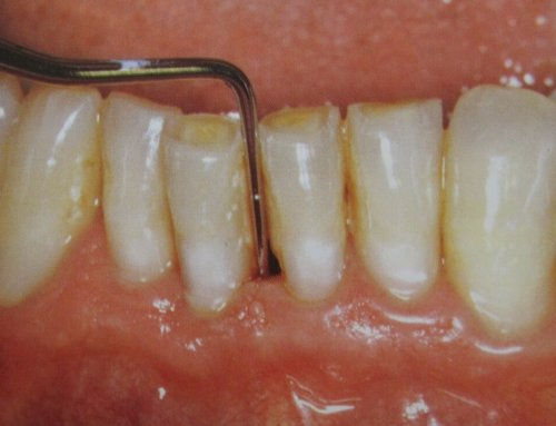 Long-Term Risks of Periodontal Disease