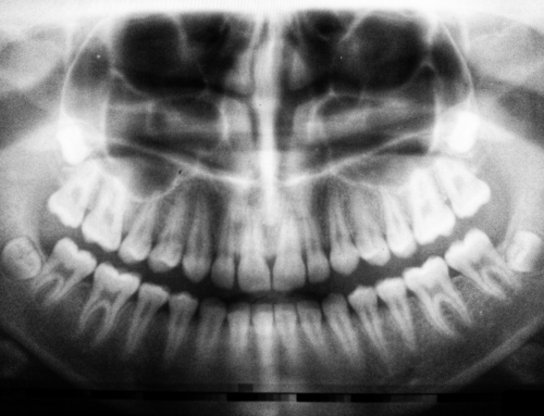 Truths & Myths About Root Canal Therapy
