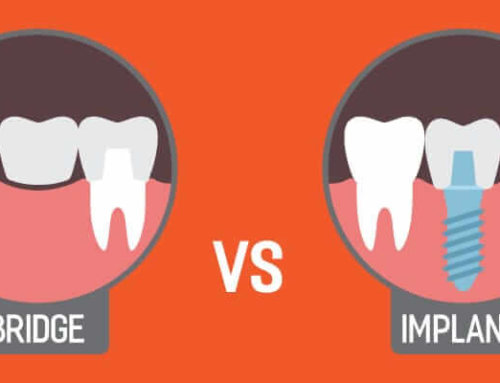 Dental Bridge Vs Implant – Which One To Choose