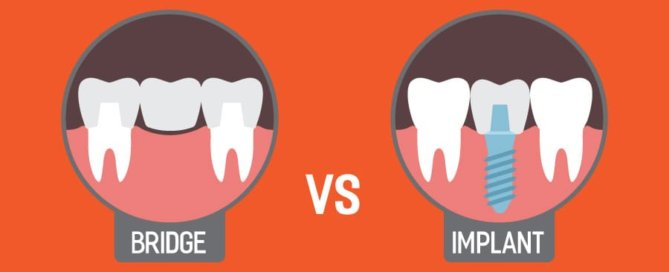 Dental Bridge Vs Implant | Monroe Family Dentistry