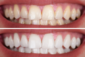 Teeth Whitening In Monroe NC