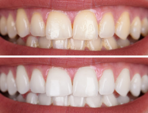 Professional Teeth Cleaning Cost, Procedure & Concerns