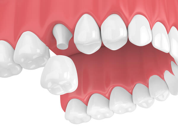 Dental Crowns - Monroe Family Dentistry