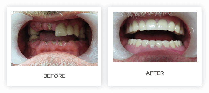 7 Misconceptions About Dentures