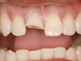 Tooth Crown - Before