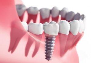 Dental Implant Options