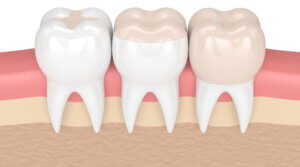Facts About Inlays and Onlays - Monroe Family Dentistry