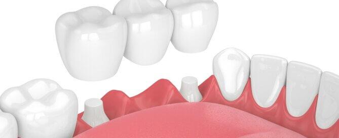 The Risk Of Getting A Dental Bridge - Monroe Family Dentistry
