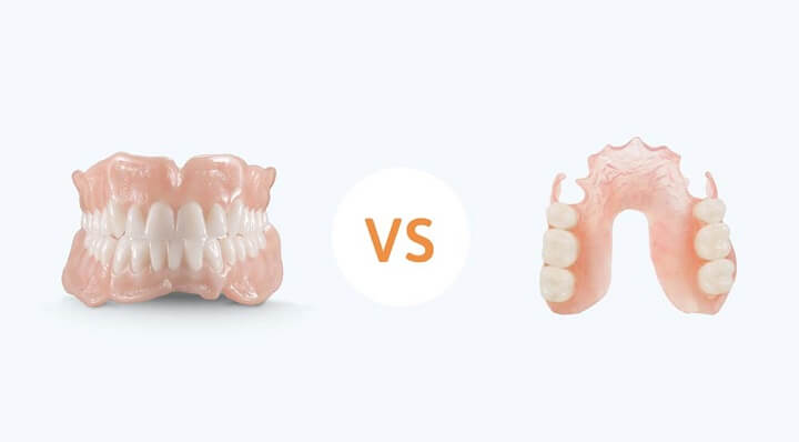 Differences Between Full & Partial Dentures - Monroe Family Dentistry